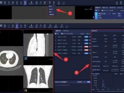 新冠肺炎AI应用增强版,高效辅助大规模影像筛查
