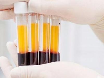 康复患者体内含抗体!金银潭医院院长恳请捐赠血浆,血浆能治病吗