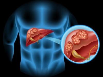"""肝脏是""""哑""""的。如果有8种症状,建议检查肝脏是否健康"""