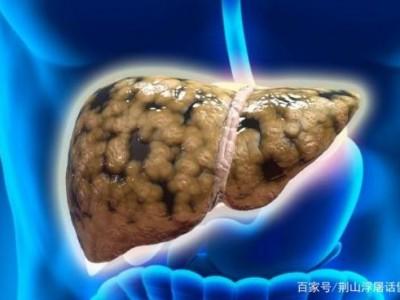 为什么脂肪肝在增加?提醒:每天做三件事,肝脏可能会感激你