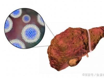 一个好的肝脏,为什么会出现肝硬化?其实这七个激励隐藏了很久。