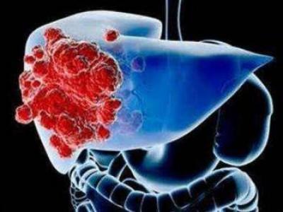 """5伤害肝脏的""""毒素""""可能会在你的厨房里发现,所以现在进行快速的自我检查还不算太晚。"""
