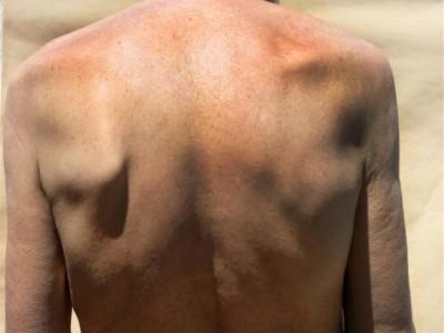 神经根型颈椎病更严重,难以避免六大危害,不仅仅是引起疼痛。