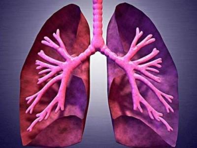 建议中老年人多吃三种水果,消炎杀菌,提高免疫力。