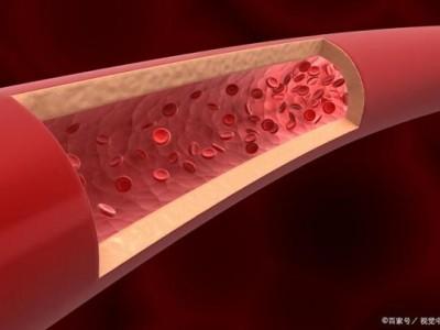 不知道血管变硬了吗?仔细观察,应该会发现一些线索。