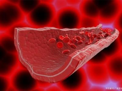 血管硬化后还能软吗?与其考虑如何软化,不如提前预防。