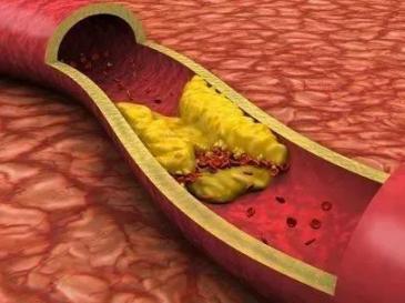 血脂超标的人可以吃鸡蛋,但如果你提前离桌,忍住就能赢。  高血脂怎么治 气温升高 血脂高的饮食 高血脂食疗 想飞就能飞起来 初中升高中分数查询 还请将军少饮酒 重金属超标的香烟 高血脂激光治疗仪 治疗高血脂的偏方 第2张