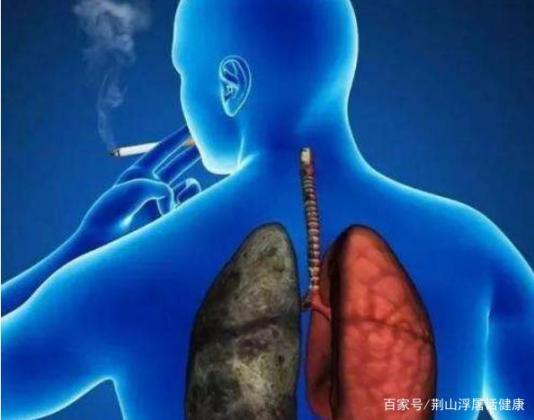抽烟的人,肺部开始生病,或者有五种症状。别大意,去做个检查。  工作检查范文 四风问题对照检查材料 做个环保小卫士 抽烟的人吃什么好 利菁生病 钟南山称新冠无明显肺部后遗症 体检检查的项目 子宫移位有什么症状 鱼生病了怎么办 小儿蛔虫病症状 第1张