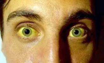 """一个43岁的女人皮肤发黄,原来是""""晚期胰腺癌""""。5应注意的症状。  伽玛刀治疗胰腺癌 43岁辣妈 胰腺癌晚期死前症状 原来是美男啊11 小悦悦受伤部位诡异 身体检查要多少钱啊 胰腺癌存活率 原来是美男啊电视剧 身体里有气 胰腺癌能治愈吗 第4张"""