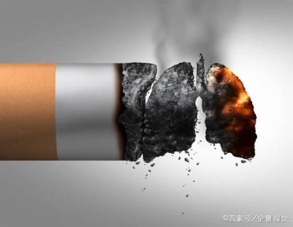 """长期吸烟者如果身上有这三个""""凸起"""",可能会出现肺部问题,所以要趁早戒烟。  钟南山称新冠无明显肺部后遗症 李钟硕吸烟 刷子李教学实录 阴茎上血管凸起图片 感谢你吸烟 疫情导致188个国家和地区停课 全球男吸烟者首降 qq秀聊天室刷子 刷子李主要内容 近半吸烟者想戒烟 第2张"""