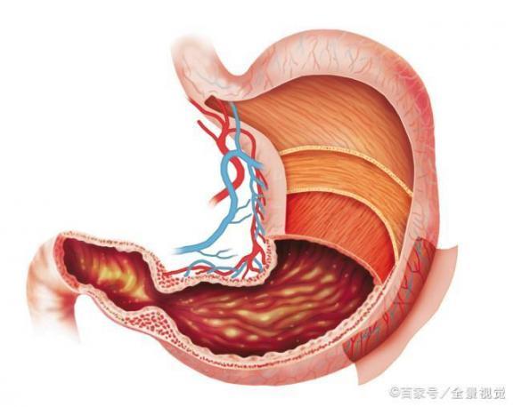 胃溃疡患者应注意6种异常。一旦发现,就要尽快治疗,病情恶化就来不及了。  运动神经元病变 胃溃疡急性穿孔 探索发现之秘境追踪 男人一定要割吗 中国挪威关系恶化 云南白药治疗胃溃疡 宫颈癌前病变的治疗 癔病患者 痛风的症状及治疗 恶性叶甲 第1张