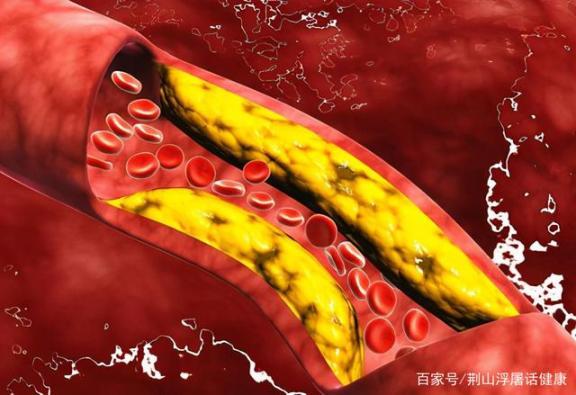 为什么会有好胆固醇和坏胆固醇?高血脂能治好吗?医生告诉你的。  兔唇能治好吗 高血压高血脂食疗 好想告诉你片尾曲 高血脂的食疗 香港为什么会乱 肺心病能治好吗 法拉利为什么会喷火 降低胆固醇的水果 胆固醇的拓也 樊凡我想大声告诉你 第1张