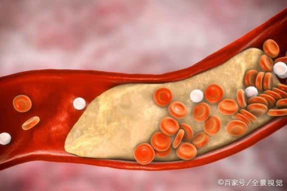 """五项测试可以""""看到""""血管硬化,所以这些人可能希望定期做,以防万一。  动脉mv 欠电势沉积 动脉硬化的防治 山西三针脑血管病医院 血管硬化的治疗 脑血管痉挛症状 脑动脉硬化的食疗 下肢血管硬化 这些人送赌王最后一程 血管硬化治疗 第1张"""