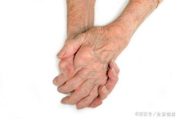 痛风和分期?患者一般经历三个阶段,急性期和稳定期要分开。  患者杀医生 跑滴滴车的艳遇经历 类风湿关节炎饮食 痛风论坛 课题研究阶段性计划 一个女人的推油经历 如何消除痛风石 痛风肾病 郭碧婷向佐分开 当初把我腿分开 第2张