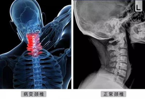 为什么扭脖子会发出嘎嘎声?可能很多人想错了!  上海治疗颈椎病 颈部皮肤除皱 颈椎病自我治疗体操 颈椎病按摩器 颈椎病的自我治疗图 颈部除皱提升术 健康之路颈椎病 爱错了吗 治颈椎病 宝贝放松我就进去不动 第2张