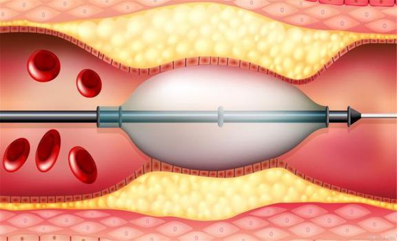 血栓堵塞血管很可怕?幸运的是,现代人已经能够改变他们的方式来溶解血栓!  阴茎上血管凸起图片 脑血管病医院 得了脑血栓怎么办 打印头堵塞 郭靖的改变 输卵管堵塞怎么治疗好 患者身份确认制度 快捷方式病毒专杀工具 物质在水中的溶解 羊水栓塞的临床表现 第3张