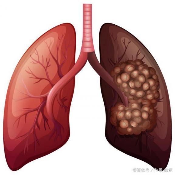 四种原因容易导致肺癌!应注意多种症状的发生。医生会和你谈谈肺癌的预防和治疗。  乡村医生个人述职 肺癌的早期治疗 肺癌病人的饮食 精神紧张导致失眠 新疆发生骚乱 预防溺水珍爱生命 乙肝的治疗方法 4个原因导致美国疫情加速蔓延 h7n9有什么症状 肺癌晚期偏方 第1张