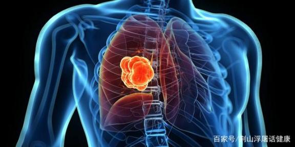 四种原因容易导致肺癌!应注意多种症状的发生。医生会和你谈谈肺癌的预防和治疗。  乡村医生个人述职 肺癌的早期治疗 肺癌病人的饮食 精神紧张导致失眠 新疆发生骚乱 预防溺水珍爱生命 乙肝的治疗方法 4个原因导致美国疫情加速蔓延 h7n9有什么症状 肺癌晚期偏方 第7张