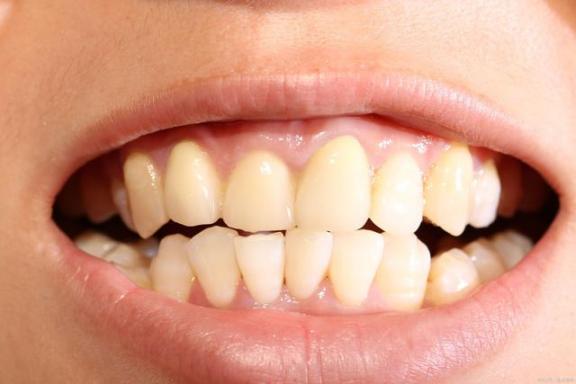 想知道门牙覆盖深度?请接受两个基本的知识。  绿地率和绿化覆盖率 深度主题包 真的我想知道 门牙中间有缝怎么办 想知道现在你好不好 厦门牙科医院 本地连接受限制怎么办 5G覆盖40个城市 意大利红酒知识 门牙种植牙多少钱一颗 第2张