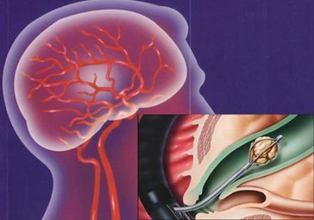 """""""脑梗塞加速器""""可能是餐桌上常见的食物,老年人要注意。  餐桌上的悬念 餐桌上的大学 不可能是不可能的事 餐桌上的游戏 cf加速器逆天发布 老年人喝哪种奶粉好 中医治疗脑梗塞 老年人补钙什么最好 丰胸食物有哪些 脂肪的食物来源 第4张"""