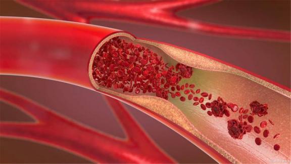 """动脉粥样硬化的六大""""罪魁祸首""""已被查出,其中一半是慢性病,应及时改变不良习惯。  眼底血管硬化 查血能查出肝病吗 改变自己与改变世界 肺动脉高压能活几年 张文秀被查出兴奋剂 一批慢性病患者常用药大幅降价 慢性病防治知识 脑动脉破裂 爱拼就会赢 癌症只是慢性病 第1张"""