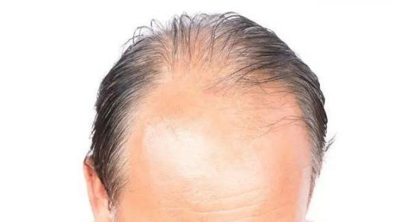 除了遗传,脱发可能有六个原因,有四种方法可以帮助你找到你的头发。  食物减肥方法 佝偻病会遗传吗 找到你评价 慢性荨麻疹遗传吗 手工坦壳制作方法图片 眼球震颤会遗传吗 裸身吹头发现男子 头发怎么扎好看简单 防脱发偏方 下辈子也要找到你dj 第1张