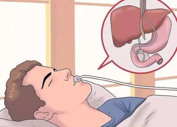 """肝脏晚期是一种""""无声病"""",如果有四种不适,可能是肝衰竭的前兆。  生孩子的前兆 如果有一天你不在我身边 肝脏血管瘤怎么治 肝衰竭中期 如果有一天我有了大肚腩 美国未检测病例可能是确诊的11倍 大地震前兆 肝脏排毒不好的症状 肝脏不好是什么症状 美国未检测的病例可能是确诊的11倍 第2张"""