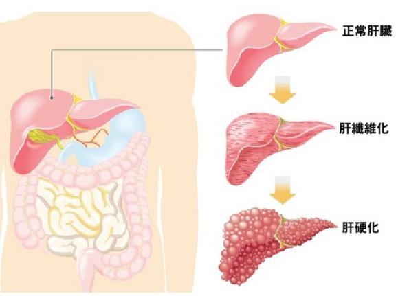 """肝脏晚期是一种""""无声病"""",如果有四种不适,可能是肝衰竭的前兆。  生孩子的前兆 如果有一天你不在我身边 肝脏血管瘤怎么治 肝衰竭中期 如果有一天我有了大肚腩 美国未检测病例可能是确诊的11倍 大地震前兆 肝脏排毒不好的症状 肝脏不好是什么症状 美国未检测的病例可能是确诊的11倍 第7张"""