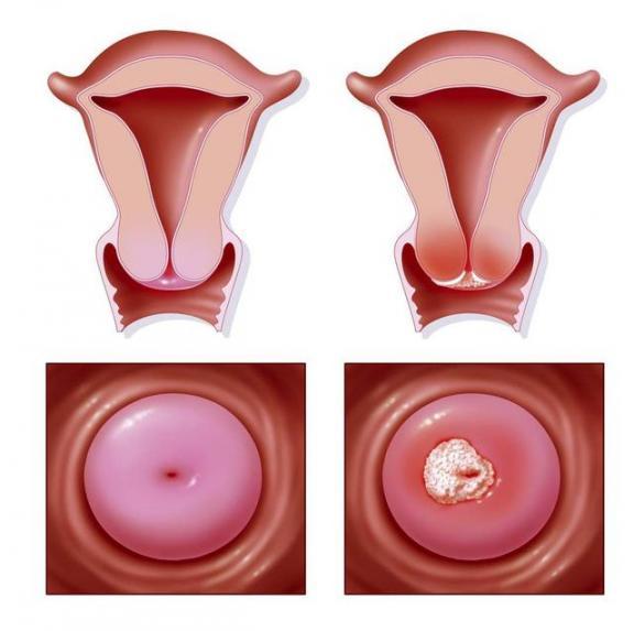 子宫颈是否健康,生理期过后可能有答案。五个异常值得警惕。  子宫颈扩张 女性生理期饮食 子宫颈肉瘤 什么样的女人值得爱 警惕全球变暖 用吸尘器清洁身体 子宫颈炎症状 梦见杀猪流血 爱过就值得 宫颈癌前病变的治疗 第2张