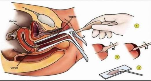 子宫颈是否健康,生理期过后可能有答案。五个异常值得警惕。  子宫颈扩张 女性生理期饮食 子宫颈肉瘤 什么样的女人值得爱 警惕全球变暖 用吸尘器清洁身体 子宫颈炎症状 梦见杀猪流血 爱过就值得 宫颈癌前病变的治疗 第4张