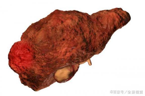 肝脏发展成肝硬化了吗?患者面对5种选择,可以考虑肝移植。  当年明月面对面 肝脏囊肿是什么 杨丞琳死了吗 早期肝硬化食谱 钟南山谈康复患者是否会有后遗症 爱情选择题电视剧全集 幸福选择题下载 养护肝脏 生态农业发展前景 肝脏血管瘤症状 第3张