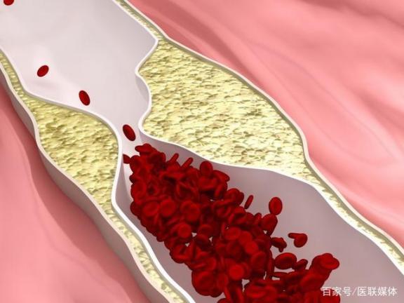 身体经常出现这四种症状,血液可能太粘了。  女孩光身体 道德的血液 h7n9的症状 驻以大使杜伟因身体原因意外去世 少女百元出租身体 接触性皮炎的症状 你是我血液里的毒 血液中的红细胞可以活 手部湿疹症状图片 第1张