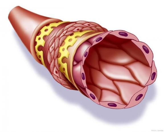 带走爱因斯坦?主动脉瘤真危险,常见的三个根本要警惕。  生姜是姜的哪个部位 爱因斯坦出的智商测试题 警惕娱乐化解读 爱因斯坦智商测试题 爱因斯坦的超级问题 警惕颜色革命 危险辩护 危险关系剧情介绍 肺动脉高压能活几年 部位相反 第1张