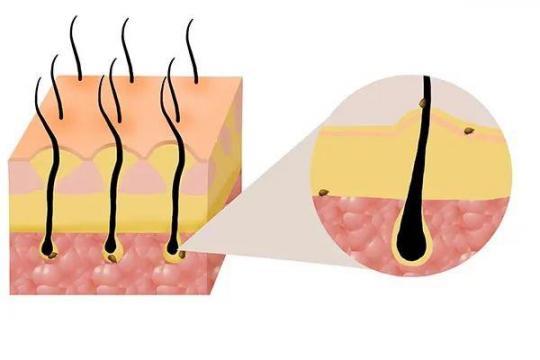 脱发是因为头上有螨虫吗?脱发的常见原因,应该知道。  用什么可以防止脱发 脂溢性脱发生姜 防脱发的偏方 第3张