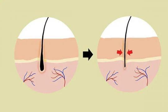 脱发是因为头上有螨虫吗?脱发的常见原因,应该知道。  用什么可以防止脱发 脂溢性脱发生姜 防脱发的偏方 第7张