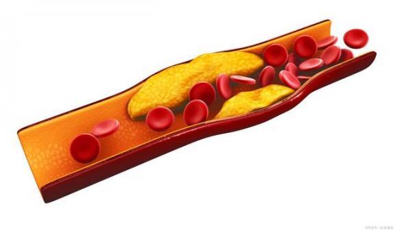 血脂异常是什么与坏胆固醇有关,服药时一定要记住两点。  记住乡愁第四季 妇科炎症常用药 电视剧你一定要幸福 脑动脉硬化的症状 窦性心动过速用药 让我们记住 动脉mv 降低胆固醇的水果 我一定要得到你歌词 外科用药 第2张