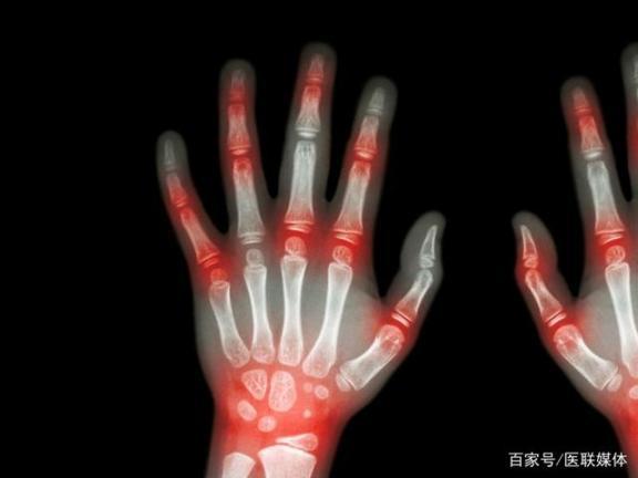 痛风发作只是关节痛,忍耐就行了吗?这四大致命危害,不能防止。  关节痛的原因 孕妇手指关节痛 致命枕边人 钛合金烤瓷牙的危害 李连杰致命摇篮 忍耐的最高境界 电脑辐射对皮肤的危害 致命速递3 kiss忍耐 大理石的危害 第1张