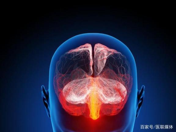 身体出现这四种表现,暗示脑血管硬化,不要迟到。  最强大脑江苏卫视直播 最强大脑陈冉冉 血液解冻机 局部模特 心脑血管硬化 享乐主义方面具体表现 锻炼身体治疗早泄 最强大脑选手破案 魔法师的血液有什么用 局部吸脂 第1张
