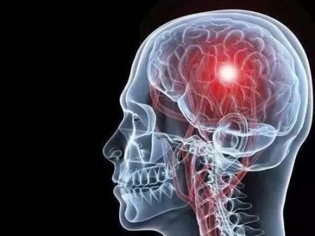 喜欢葛优躺下的中老年人很快就会改变,这个坏习惯可能为脑梗塞铺路  人的身体构造图 葛优躺侵权案落判 胆固醇的拓也 爱拼就会赢 中老年人失眠 脑梗塞后遗症抽搐 科技改变生活征文 沈浪喜欢谁 我很喜欢歌词 嗜酸性肉芽肿性多血管炎 第1张