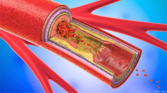 血管堵塞,可能比你想象的危害更大。经常做3件事,有利于血管通畅。  超出想象 血管胸 身体里的毒素 青海一学校发生猩红热疫情 衡阳雁去无留意上一句 总裁做完留在她身体里 更大的老虎是谁 好像身体被掏空 三个有利于是指 脑血管堵塞治疗 第1张