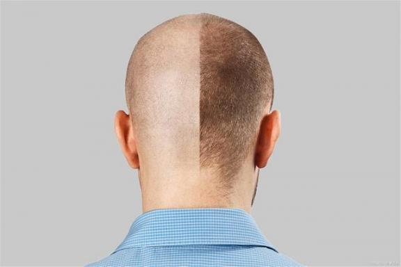 """中年容易秃顶?教你三个防止脱发的""""秘诀"""",或者可以避免。  教你谈恋爱 洪恩老兔教你学电脑 秃顶能植发吗 第1张"""