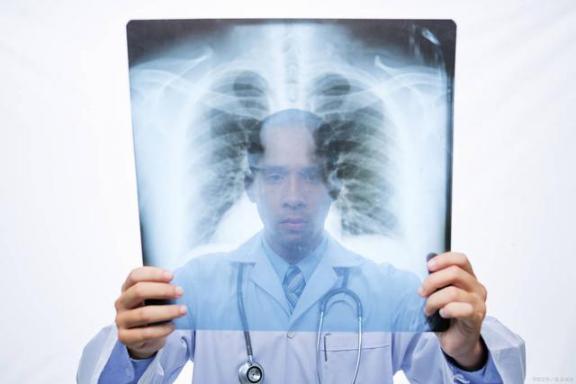 """肺癌的""""帮凶""""也不少,遗传也不是很可控,要尽量避开外面的人。  最长的人工运河 肺癌晚期的最佳治疗 围绕我崇拜的人儿 爱我的人为我痴心不悔 第1张"""