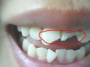 牙齿还好吗?戒掉这5个伤牙习惯,老了还有一口好牙。  宝宝5个月 西瓜霜口腔溃疡 如何戒掉手瘾 当你老了郑二 口腔拔牙 我想我可以习惯一个人生活 好习惯成就好人生 他们都老了吧 你现在还好吗 牙缝很臭 第3张