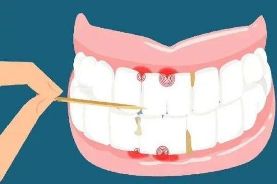 牙齿还好吗?戒掉这5个伤牙习惯,老了还有一口好牙。  宝宝5个月 西瓜霜口腔溃疡 如何戒掉手瘾 当你老了郑二 口腔拔牙 我想我可以习惯一个人生活 好习惯成就好人生 他们都老了吧 你现在还好吗 牙缝很臭 第6张