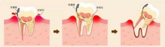 牙齿还好吗?戒掉这5个伤牙习惯,老了还有一口好牙。  宝宝5个月 西瓜霜口腔溃疡 如何戒掉手瘾 当你老了郑二 口腔拔牙 我想我可以习惯一个人生活 好习惯成就好人生 他们都老了吧 你现在还好吗 牙缝很臭 第12张