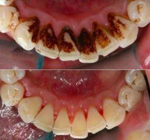 牙齿还好吗?戒掉这5个伤牙习惯,老了还有一口好牙。  宝宝5个月 西瓜霜口腔溃疡 如何戒掉手瘾 当你老了郑二 口腔拔牙 我想我可以习惯一个人生活 好习惯成就好人生 他们都老了吧 你现在还好吗 牙缝很臭 第15张