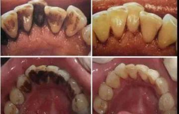 牙齿还好吗?戒掉这5个伤牙习惯,老了还有一口好牙。  宝宝5个月 西瓜霜口腔溃疡 如何戒掉手瘾 当你老了郑二 口腔拔牙 我想我可以习惯一个人生活 好习惯成就好人生 他们都老了吧 你现在还好吗 牙缝很臭 第18张