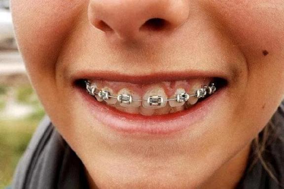 牙齿还好吗?戒掉这5个伤牙习惯,老了还有一口好牙。  宝宝5个月 西瓜霜口腔溃疡 如何戒掉手瘾 当你老了郑二 口腔拔牙 我想我可以习惯一个人生活 好习惯成就好人生 他们都老了吧 你现在还好吗 牙缝很臭 第19张