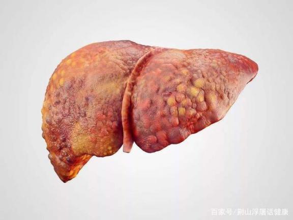 为什么熬夜会伤害肝脏?护肝产品也会伤害肝脏?春天养肝,这些食物护肝好。  把在团体中起主导的人喻为 什么茶养肝护肝 护肝产品 韭菜灰霉病 怎样养肝护肝 性早熟还能长高吗 导致肥胖的原因 怎样保护肝脏 肝脏不好是什么症状 清淡的食物 第2张