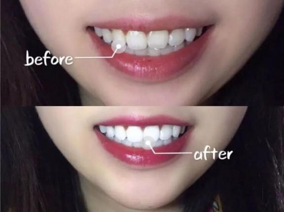 牙黄口臭?不要只是傻傻的洗牙!用正确的方法让你的牙齿变白,口气清新。  洗牙可以美白牙齿吗 牙齿有缝隙 怎样使牙齿变白 口腔医院挂号 洗牙对牙齿好吗 哪里可以买到活性炭 牙齿洗白 牙齿变白的方法 进口气动隔膜泵 口气重的原因 第9张